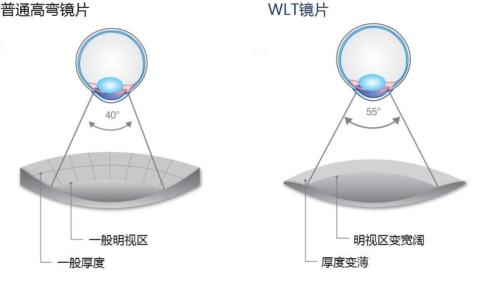 WLT镜片